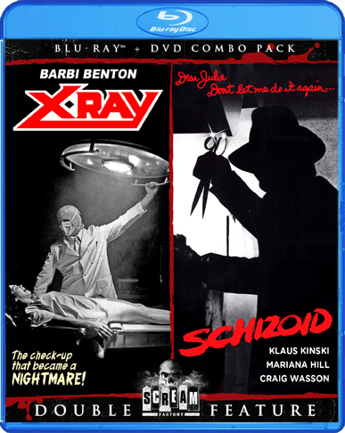 X-Ray / Schizoid [Double Feature] (SOLD OUT)